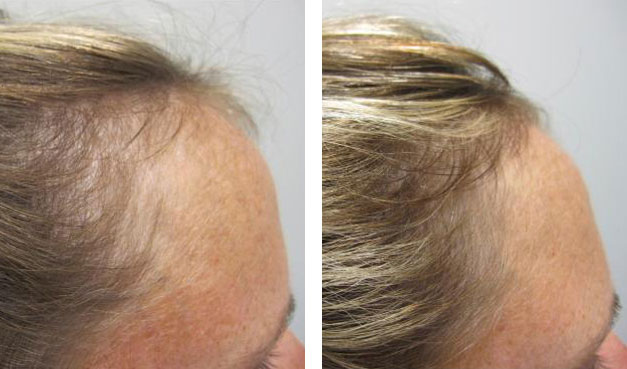 home-before-after-photos-viviscal-supplements